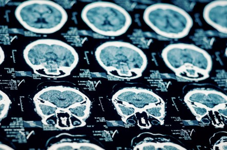 Overview of brain injuries